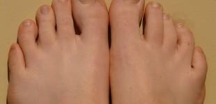 Tout savoir sur la mycose des ongles